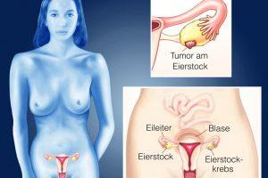 Eierstockkrebs-Ersttherapie-Eierstockkrebstumoren