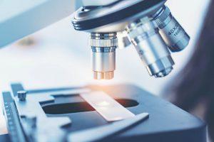 Eierstockkrebs-Ersttherapie-Histologie